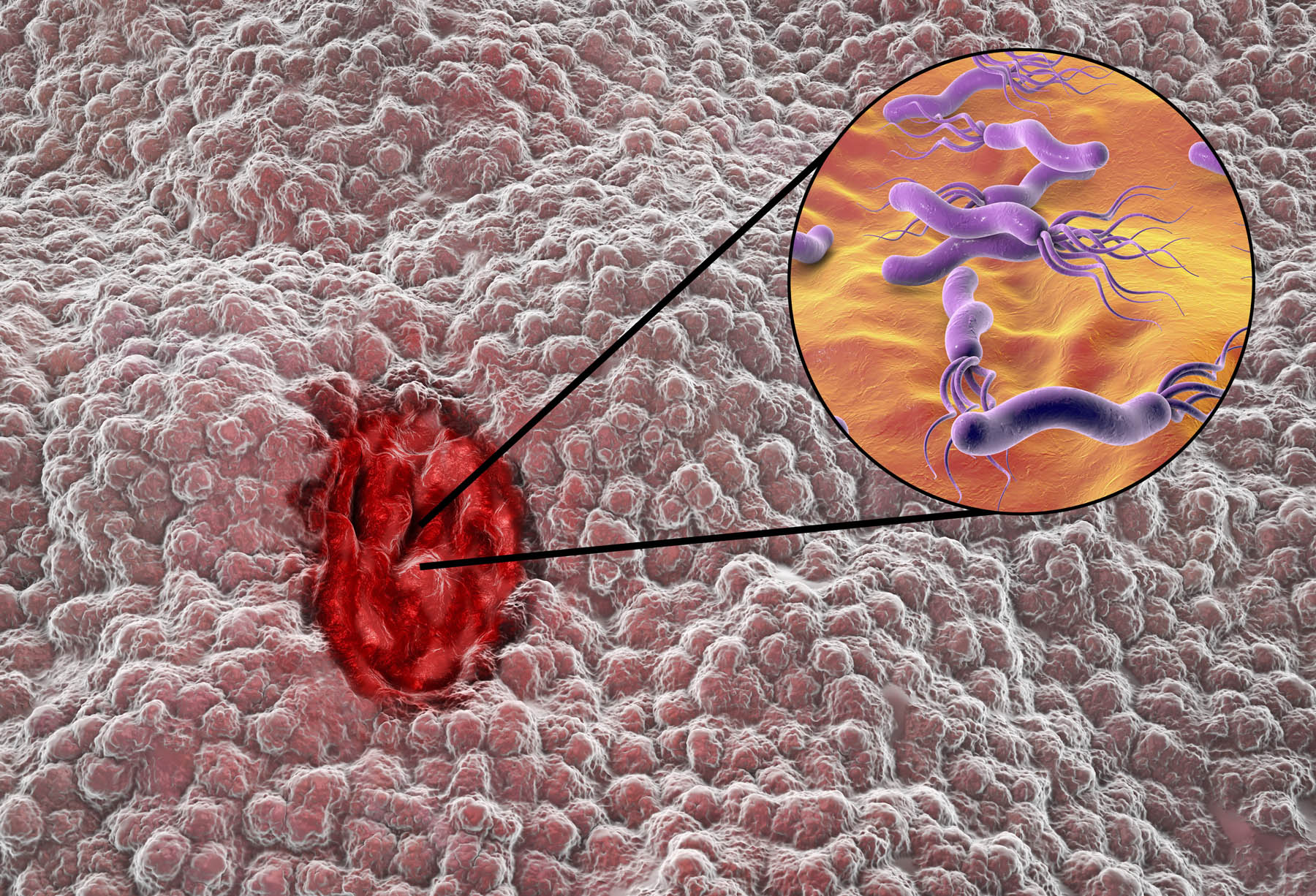 gastric-cancer2