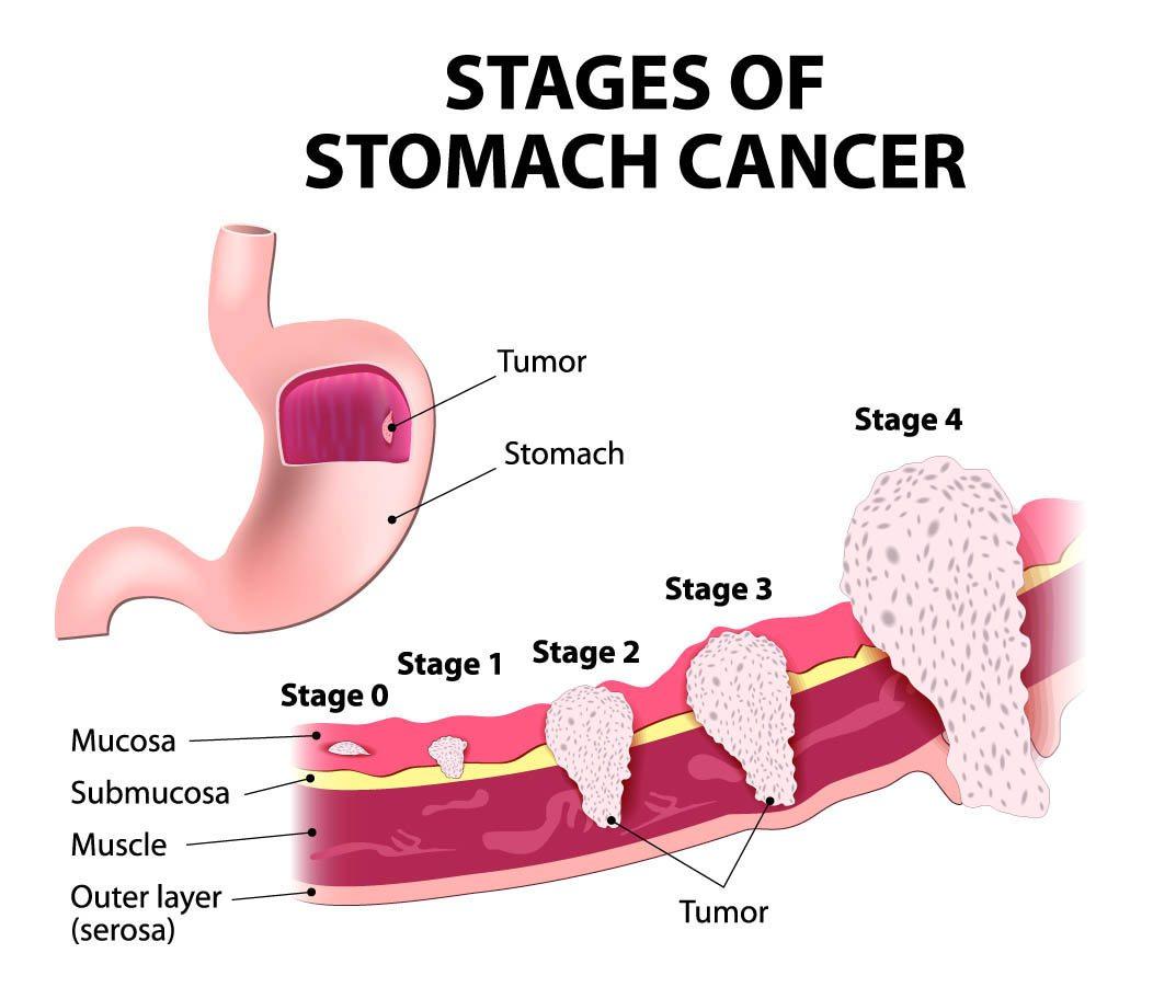 gastric-cancer4