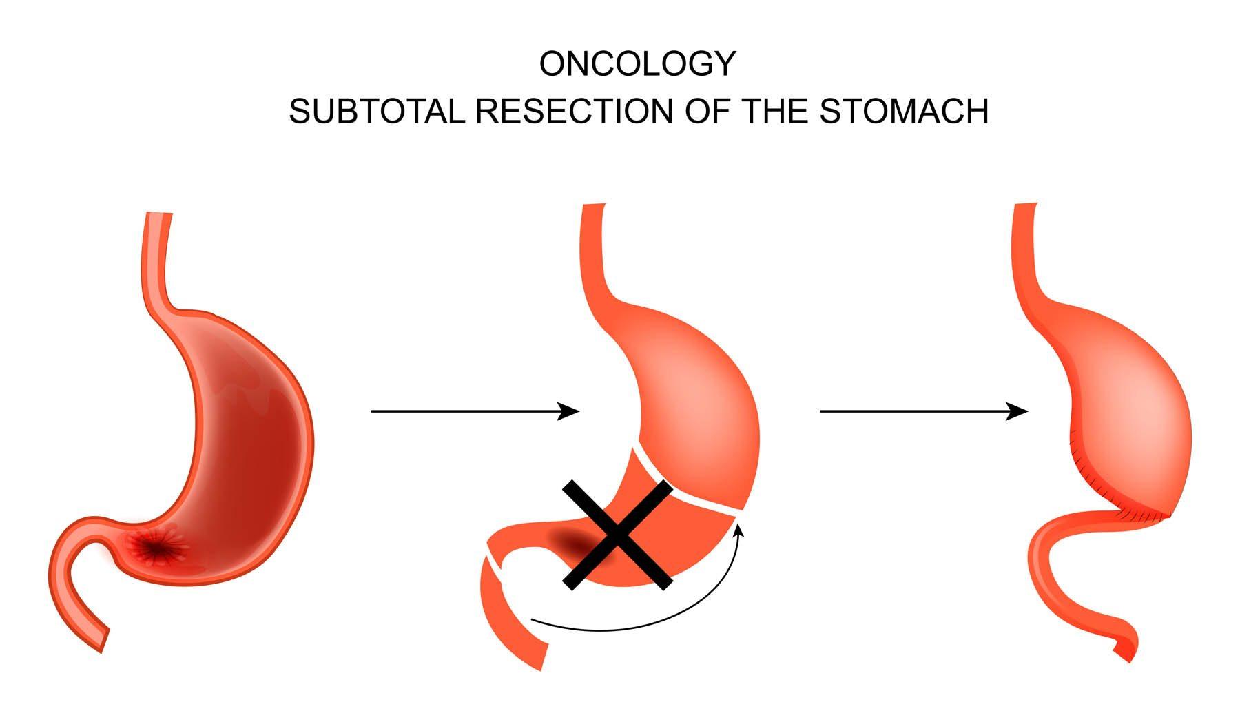 laparoscopic-gastrectomy5